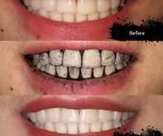 Trắng răng than tre