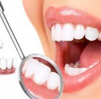 Hai phương pháp tẩy trắng răng