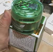 Kem trà xanh  trị nám tàn nhang trắng da whiterning green  GIÁ SĨ TỐT